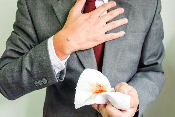 Ho ra máu là dấu hiệu cảnh báo mắc ung thư phổi