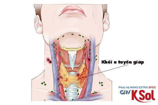 Khối u tuyến giáp di căn đến hạch ở cổ có nguy hiểm không?