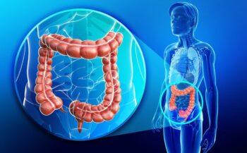 Ung thư đại tràng giai đoạn đầu – những điều cần biết
