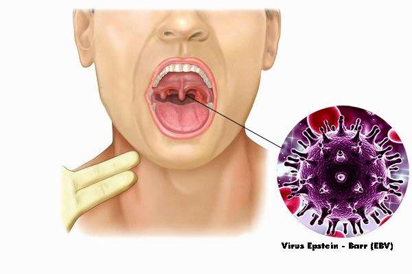 Virus Epstein - Barr (EBV) là một trong những nguyên nhân gây ung thư vòm họng