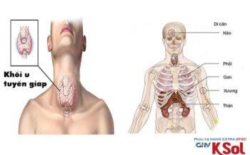 Bệnh ung thư tuyến giáp di căn hạch cổ có nguy hiểm không?