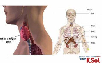 Ung thư tuyến giáp di căn đến cơ quan nào trên cơ thể?
