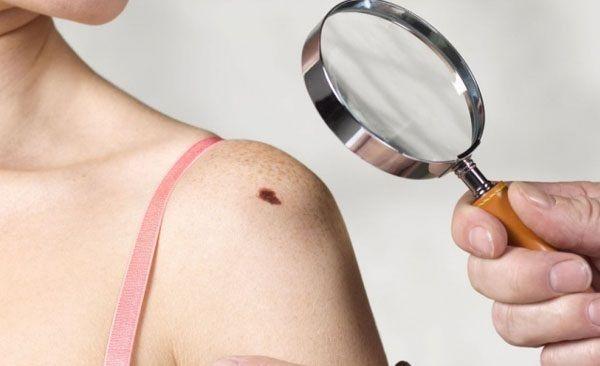 Theo dõi dấu hiệu ung thư da dựa trên những thay đổi của nốt ruồi