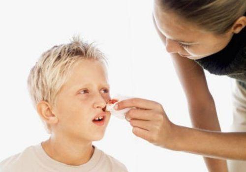 Thường xuyên chảy máu cam - dấu hiệu trẻ có thể bị ung thư máu