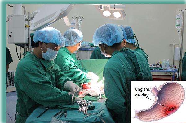 Phẫu thuật dạ dày được chỉ định trong nhiều trường hợp, trong đó có ung thư dạ dày