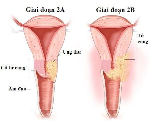 Hai giai đoạn của ung thư cổ tử cung giai đoạn 2