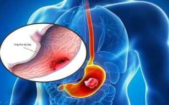 Giải đáp câu hỏi: Ung thư dạ dày giai đoạn cuối sống được bao lâu?