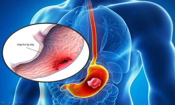 Ung thư dạ dày giai đoạn cuối là một trong những nguyên nhân gây tử vong hàng đầu