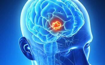 Ung thư não có chữa được không?