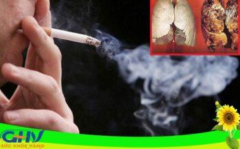 Tìm hiểu phương pháp xạ trị ung thư phổi, cách phòng ngừa