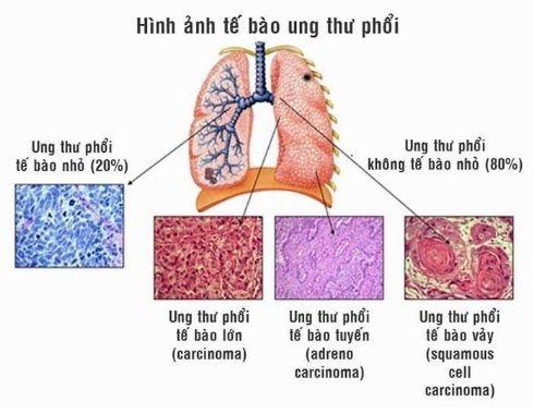 Các loại ung thư phổi