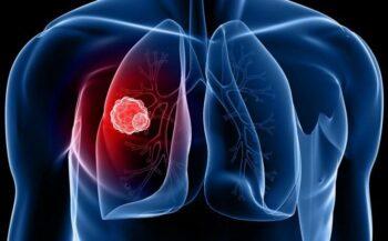 Ung thư phổi: Nguyên nhân, triệu chứng, phương pháp điều trị hiệu quả
