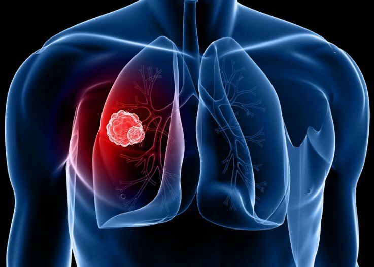 Tại Việt Nam, mỗi năm có hơn 20.000 ca mắc mới ung thư phổi