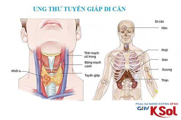 Ung thư tuyến giáp di căn đến bộ phận nào trên cơ thể