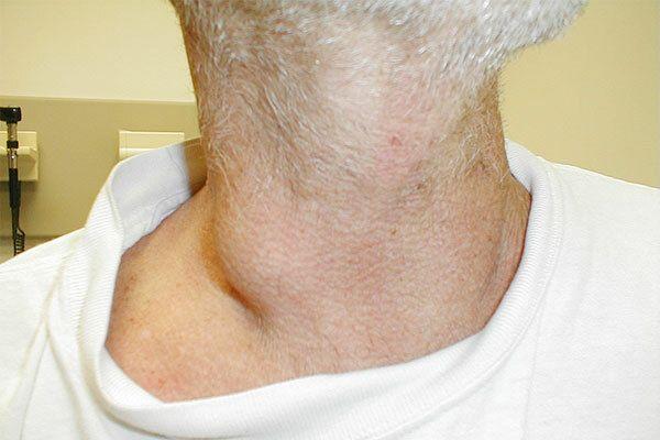 Ung thư tuyến giáp di căn thường xuất hiện triệu chứng khối u ở cổ