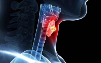 Tìm hiểu bệnh ung thư tuyến giáp thể nhú sống được bao lâu?