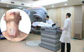 Xạ trị là gì?Những điều cần biết về phương pháp xạ trị ung thư