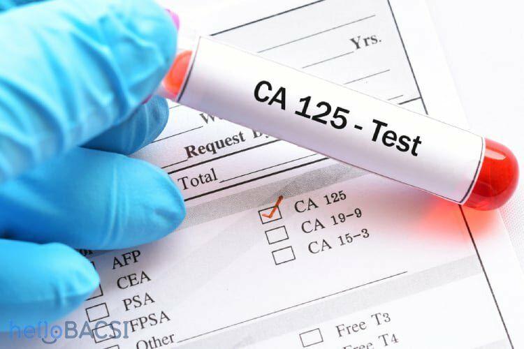 Xét nghiệm CA 125 chẩn đoán dấu ấn ung thư buồng trứng sớm