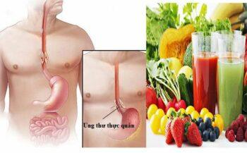 Người bệnh xạ trị ung thư thực quản nên ăn gì và kiêng gì?
