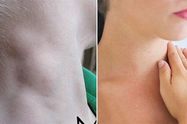 Dấu hiệu của bệnh ung thư vòm họng thường nổi hạch ở cằm