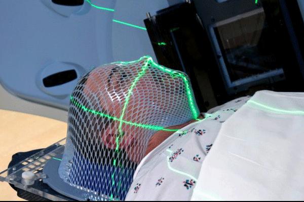 Điều trị ung thư vòm họng bằng phương pháp xạ trị