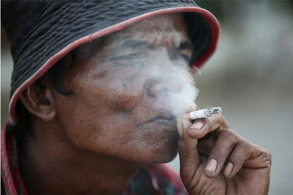 Hút thuốc lá làm tăng nguy cơ gây ung thư vòm họng