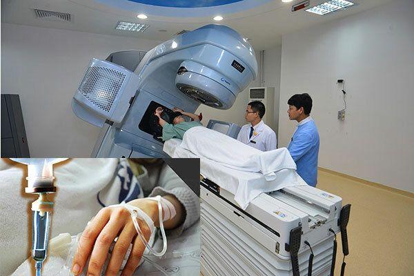 Điều trị ung thư thực quản giai đoạn 3 bằng phương pháp hóa, xạ trị