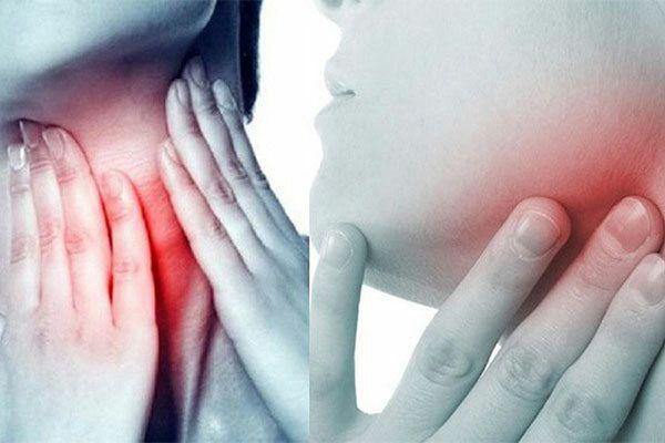 Triệu chứng ung thư vòm họng giại đoạn đầu thường có biểu hiện đau họng, đau đầu