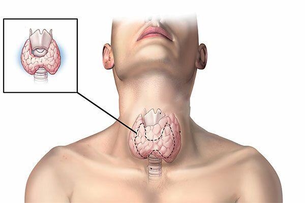 Triệu chứng ung thư tuyến giáp