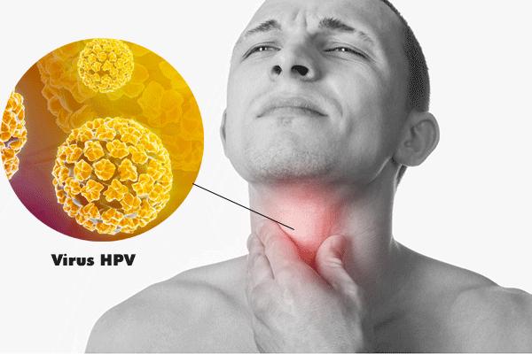 Virus HPV là một trong những nguyên nhân gây ung thư vòm họng