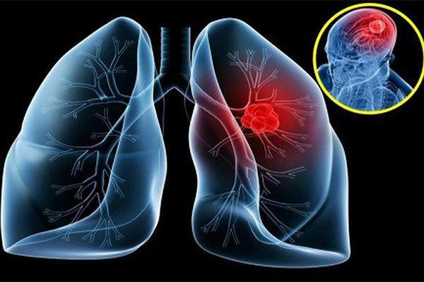Bệnh nhân ung thư vòm họng tuyết đối không được sử dụng thuốc lá