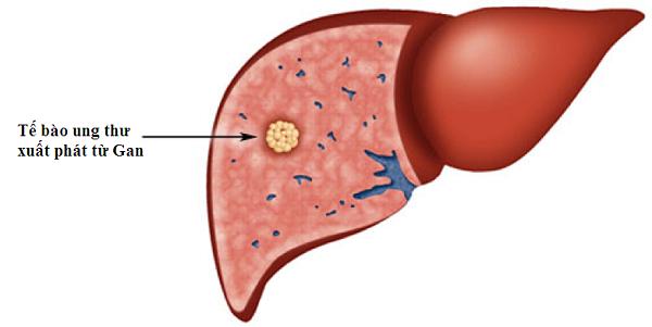 Ung thư gan nguyên phát với tế bào ung thư bắt đầu phát triển từ gan