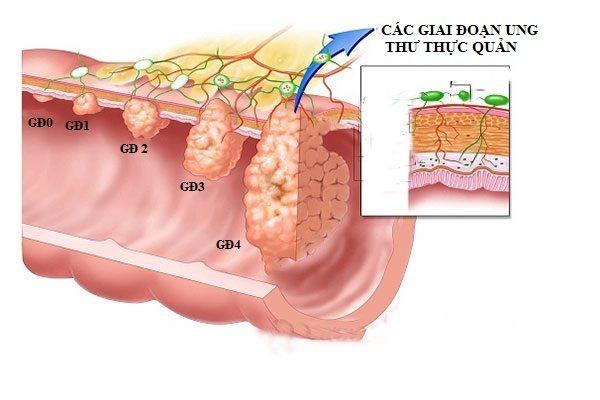 Các giai đoạn ung thư phát triển ung thư thực quản
