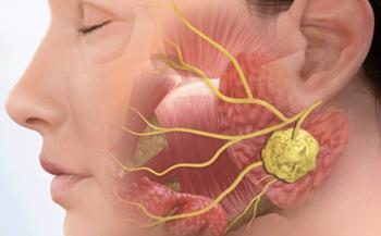 Điều trị ung thư vòm họng giai đoạn đầu bằng phương pháp nào để đạt hiệu quả?