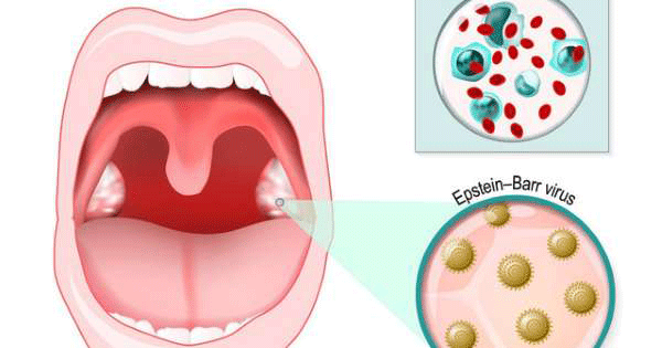 Các triệu chứng ung thư vòm họng