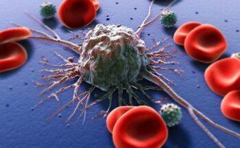 7 cách điều trị ung thư máu hiệu quả