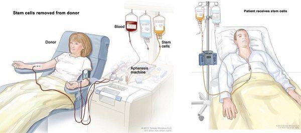 Cách điều trị ung thư máu bằng cấy ghép tế bào gốc