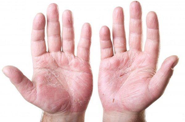 Dấu hiệu bàn tay son khi ung thư buồng trứng di căn gan