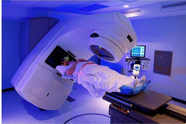 Điều trị ung thư thực quản bằng phương pháp xạ trị