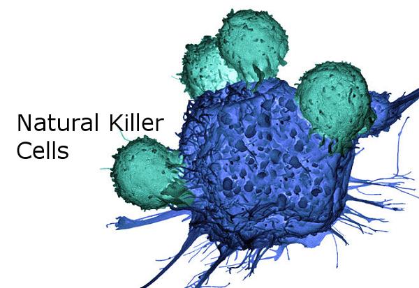 Liệu pháp miễn dịch tự thân sử dụng tế bào NK điều trị ung thư dạ dày