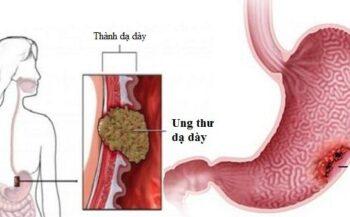Các triệu chứng ung thư dạ dày giai đoạn đầu – Hướng dẫn nhận biết và phát hiện sớm
