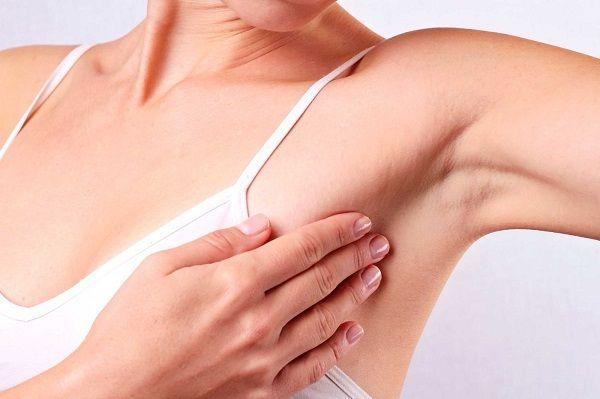 Nổi hạch nách không rõ nguyên nhân có thể là dấu hiệu của bệnh ung thư vú