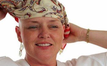 Xạ trị ung thư tuyến giáp có bị rụng tóc không?