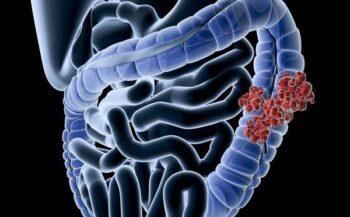 3 triệu chứng ung thư đại tràng phổ biến – bạn có biết?