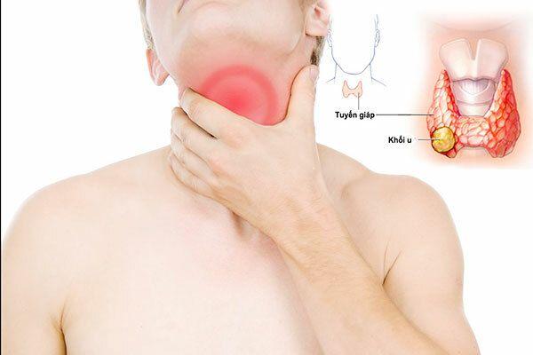 Cảm giác vướng tức bó chặt ở cổ là triệu chứng ung thư tuyến giáp