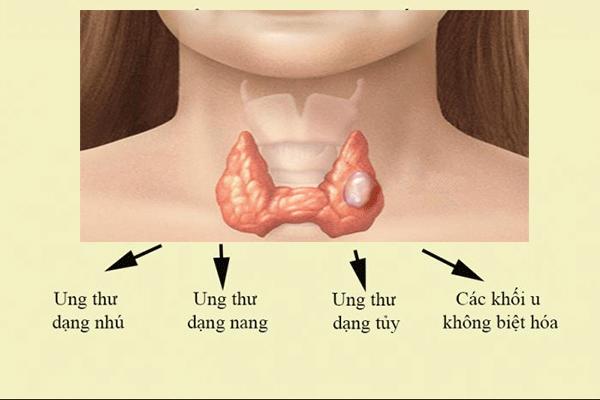 Các thể bệnh ung thư tuyến giáp