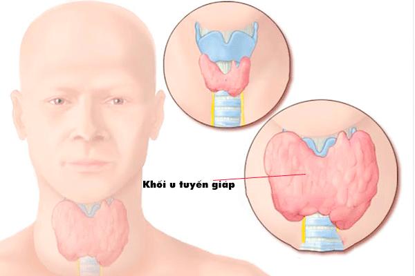Dấu hiệu nhận biết ung thư tuyến giáp