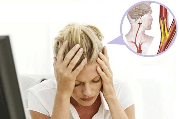 Bệnh u não là một trong những nguyên nhân dẫn đến đau đầu