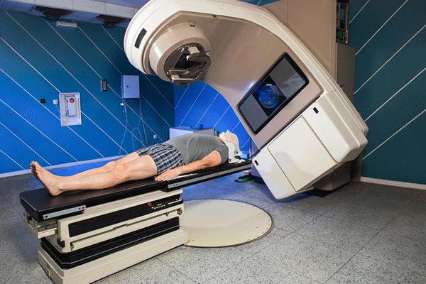 Điều trị K tuyến giáp di căn xương bằng xạ trị ngoài