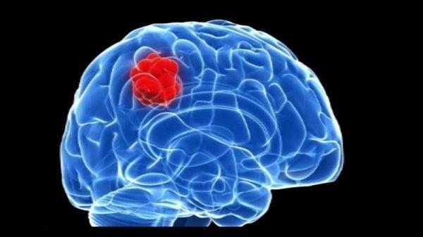 Ung thư buồng trứng di căn não gây nhiều triệu chứng tương ứng với vùng não bị tổn thương